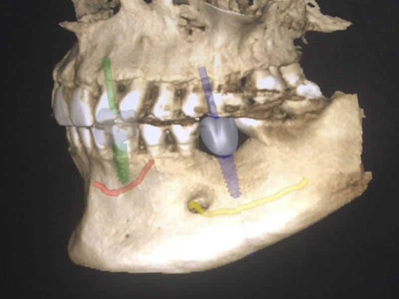 Implantología | San Lorenzo Dental