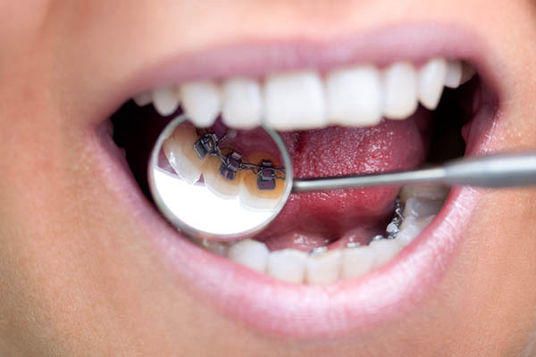 Ortodoncia Lingual | San Lorenzo Dental