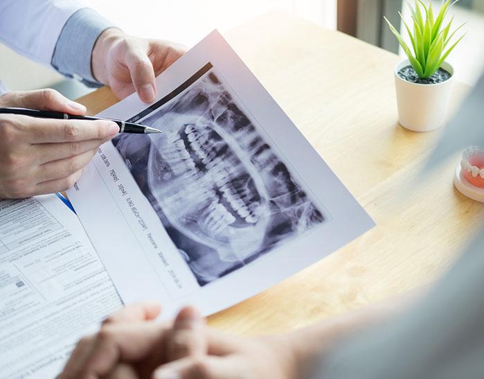 Medicina oral | San Lorenzo Dental