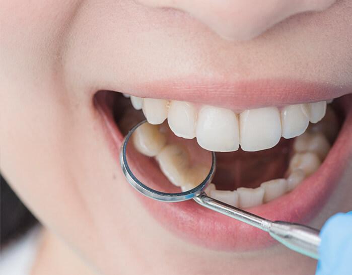Periodoncia | San Lorenzo Dental